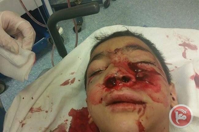 Infanzia palestinese nel mirino di Israele: bimbo di 10 anni gravemente ferito