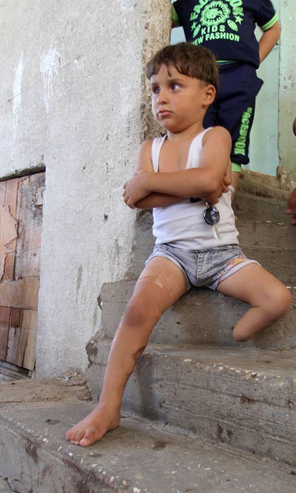 Sharif, il piccolo palestinese gazawi ferito da Israele