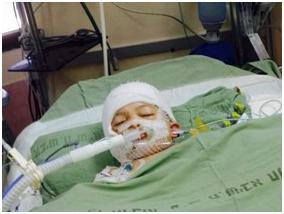 La famiglia di Dawabsheh ha bisogno di un anno in terapia intensiva