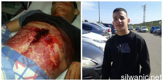 Adolescente ucciso dalle forze israeliane a Silwan