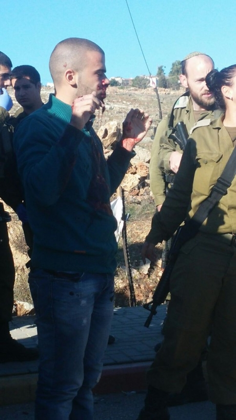 Autista palestinese investe gruppo di soldati israeliani ed è ferito