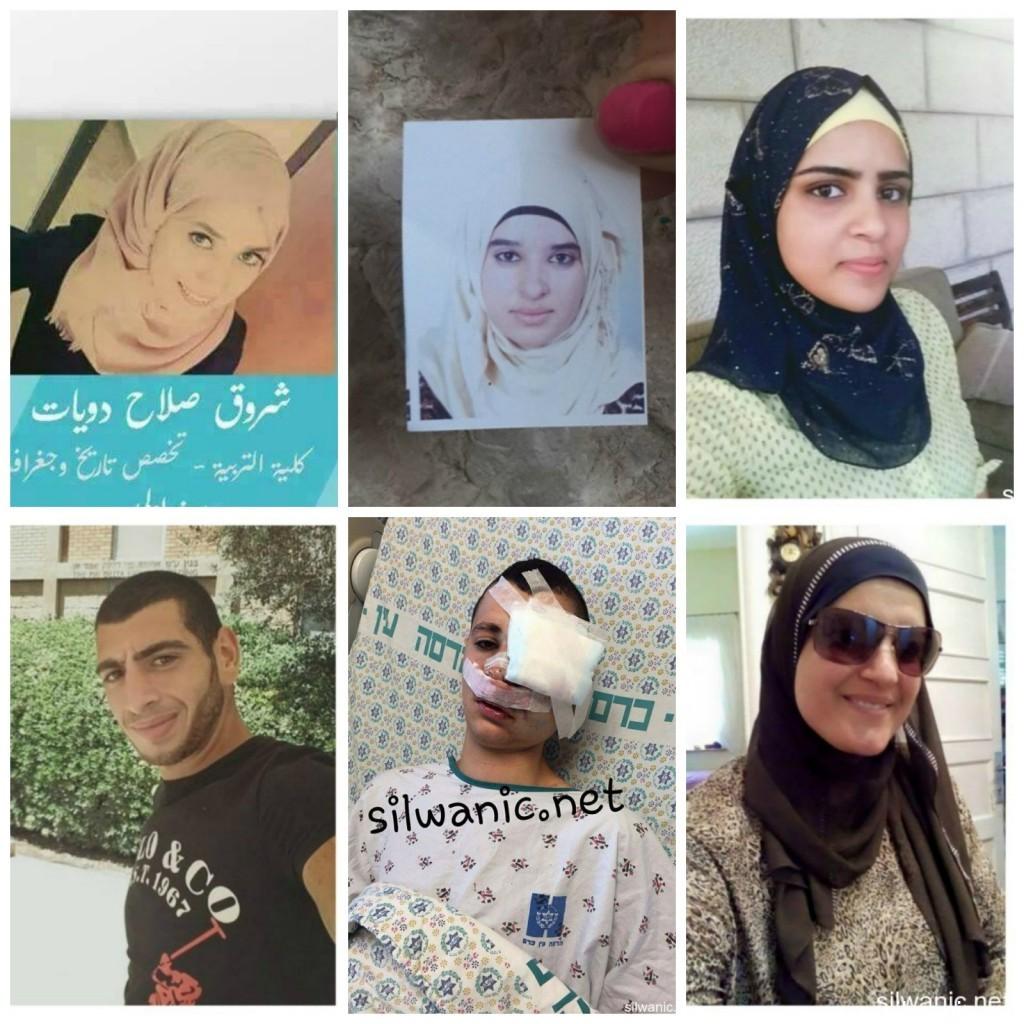 Israele e i diritti umani violati: prigionieri sofferenti per dolori causati dalle lesioni e dalla detenzione