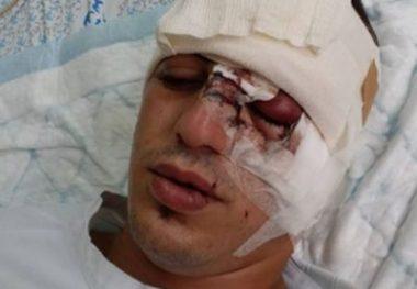 Giovane gerosolimitano ferito da granata lanciata dalle forze israeliane