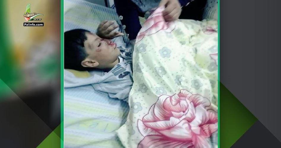 Bambino palestinese di 4 anni investito da un veicolo israeliano