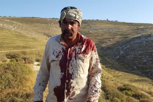 Pastore palestinese ferito a sassate da coloni