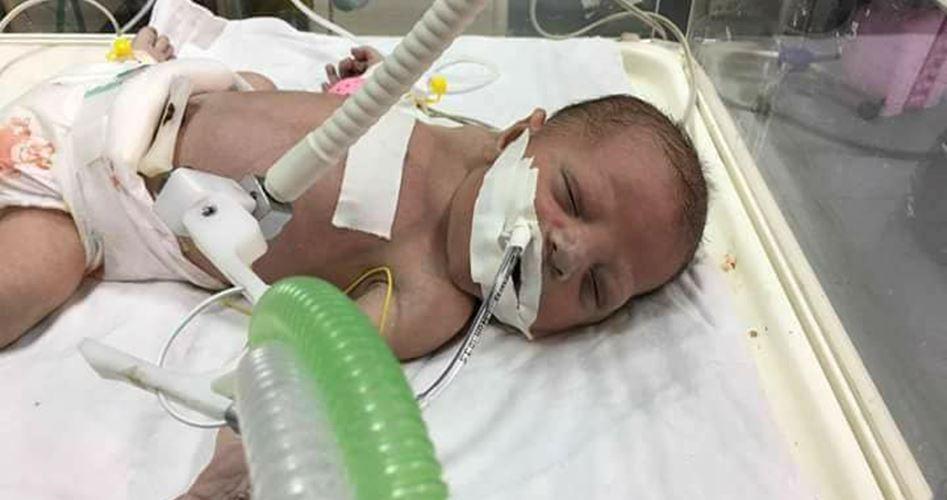 Striscia di Gaza, 3 bimbi morti per mancanza di cure mediche