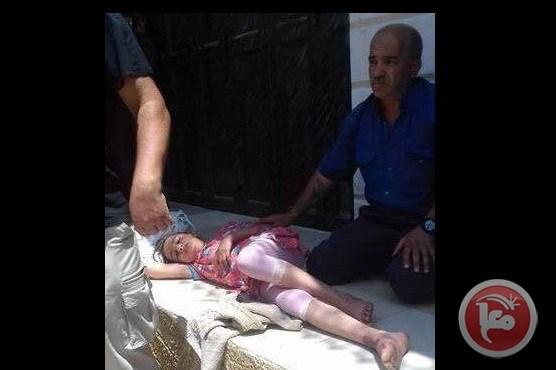 Hebron, bimba palestinese investita da colono israeliano