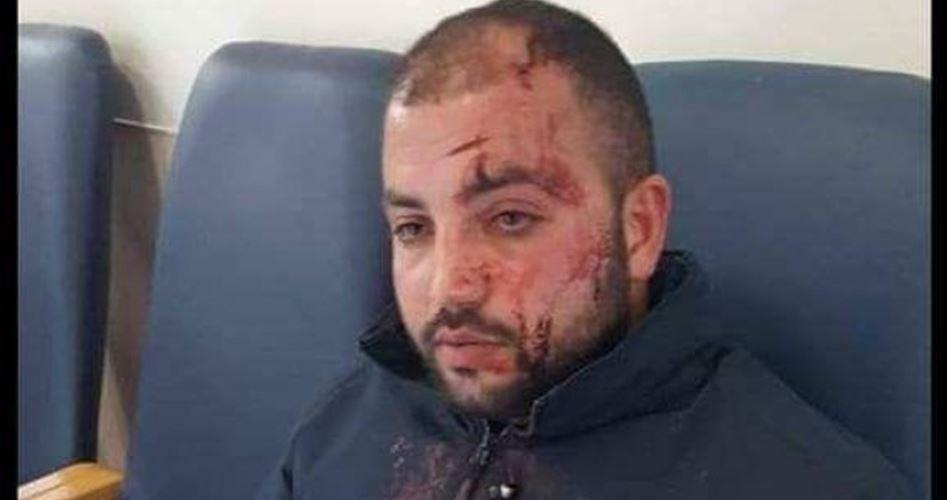 Gang di coloni ferisce giovane autista palestinese a Hebron