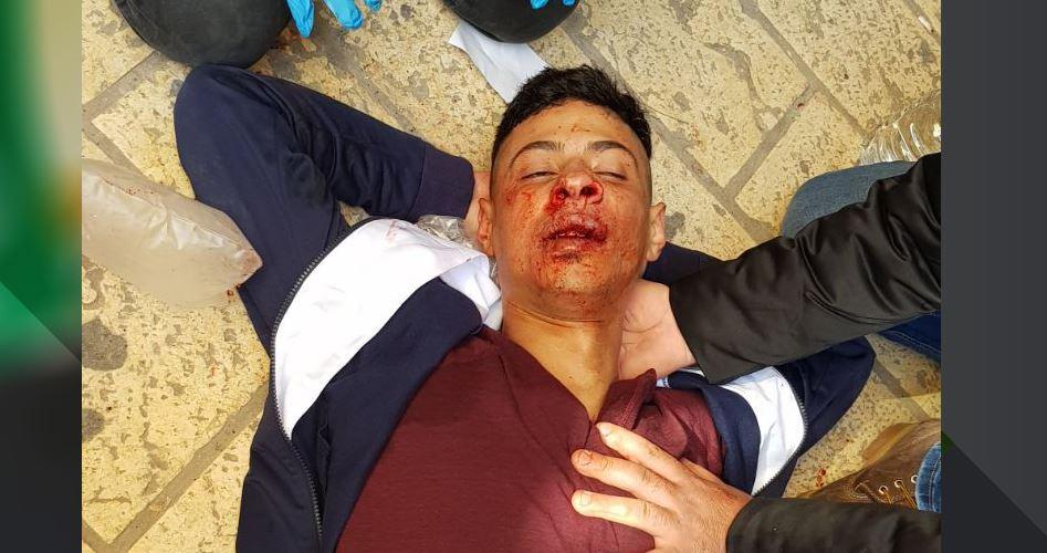 Giovane palestinese gravemente ferito da coloni a al-Aqsa