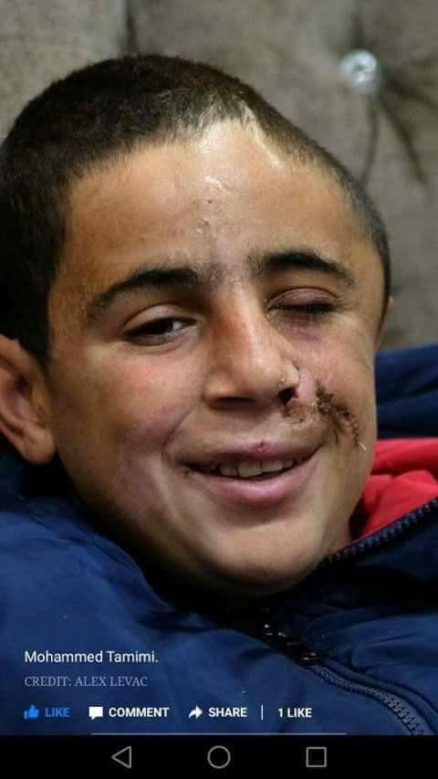 Nabi Saleh nel mirino: 10 ragazzi arrestati, compreso Mohannad, con il cranio mutilato