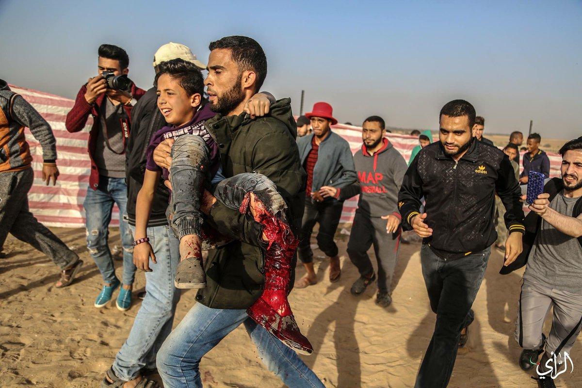 12enne palestinese colpito da cecchini israeliani perde la gamba