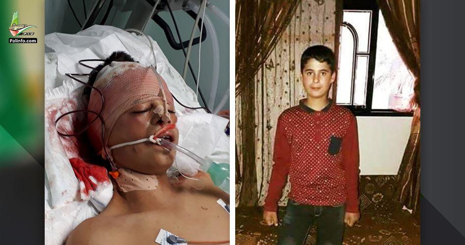 Striscia di Gaza, Grande Marcia del Ritorno, ragazzino soccombe alle ferite. Venerdì: 4 morti e quasi 1000 feriti
