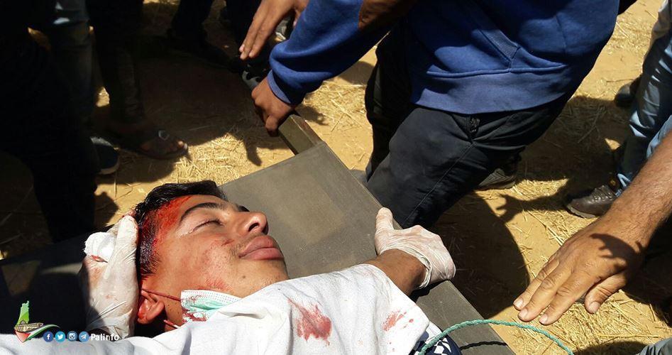 Gaza: 54 feriti sono clinicamente morti