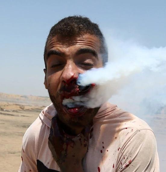 Bombe lacrimogene, un gazawi ferito gravemente
