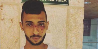 Tre attacchi razzisti contro civili palestinesi da parte di coloni in una settimana