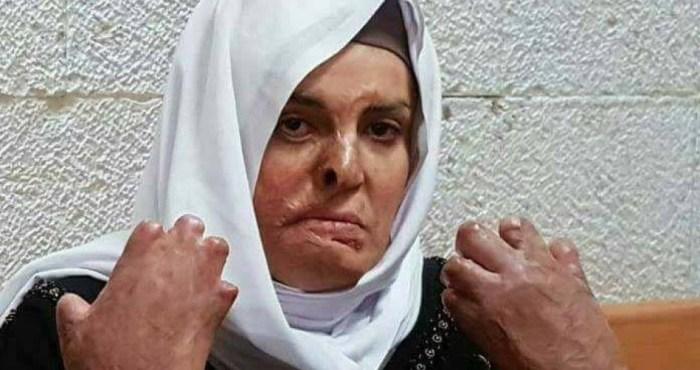 Israa, madre palestinese imprigionata, ha bisogno di urgenti cure mediche