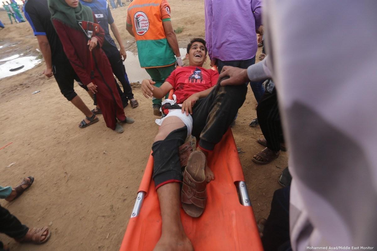 """Medici dell'MSF lottano per trattare """"ossa polverizzate da pallottole israeliane"""" a Gaza"""