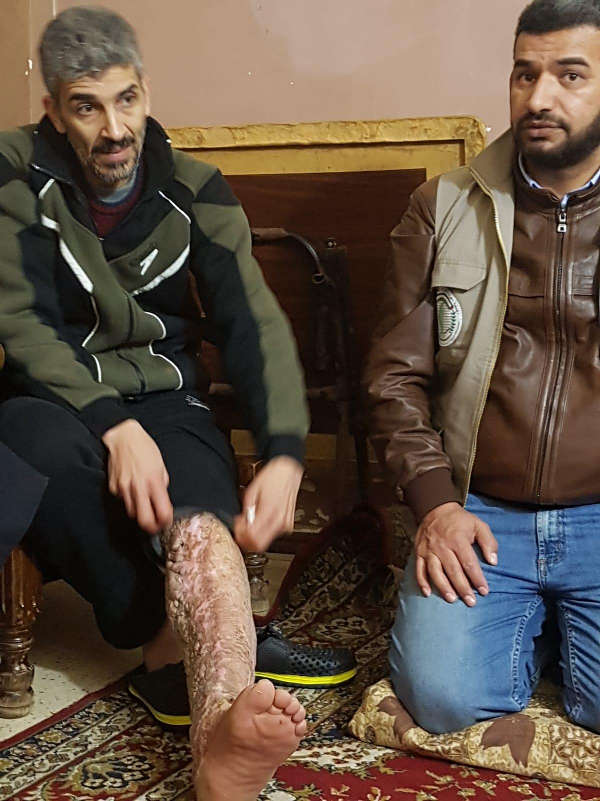 La triste storia di Hassan, profugo in Libano e affetto da filariasi
