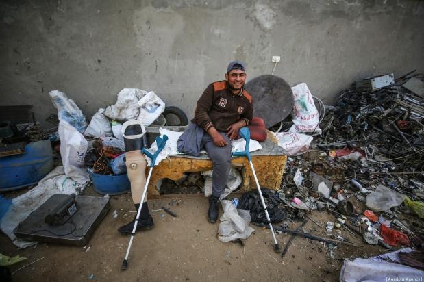 Con gamba amputata, palestinese continua a lavorare dopo attacco israeliano