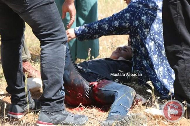 Studente gravemente ferito dai soldati israeliani durante funerale