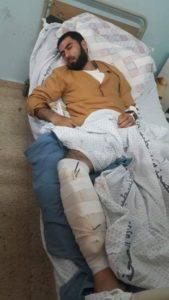 Palestinese gazawi muore per le ferite causate da proiettili israeliani nel 2018