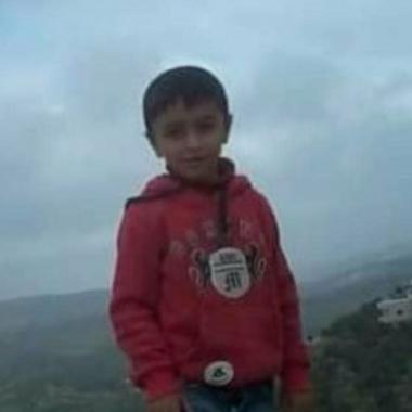 Bimbo di 10 anni ferito alla testa da soldati israeliani a Kafr Qaddum