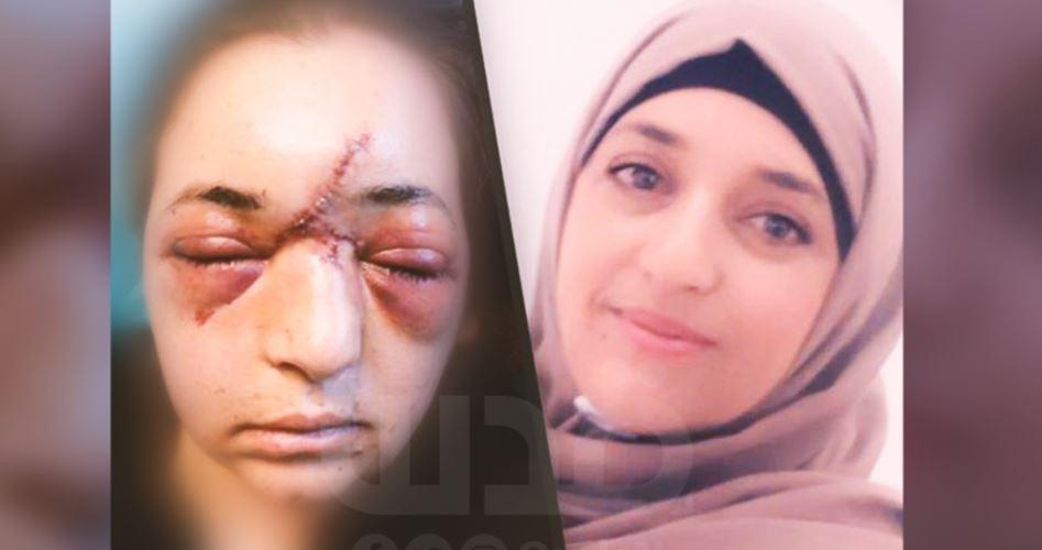 Un poliziotto israeliano frattura il cranioad una donna gerosolimitana