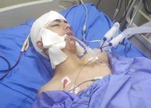 Adolescente palestinese ferito dalle forze di occupazione è in condizioni critiche