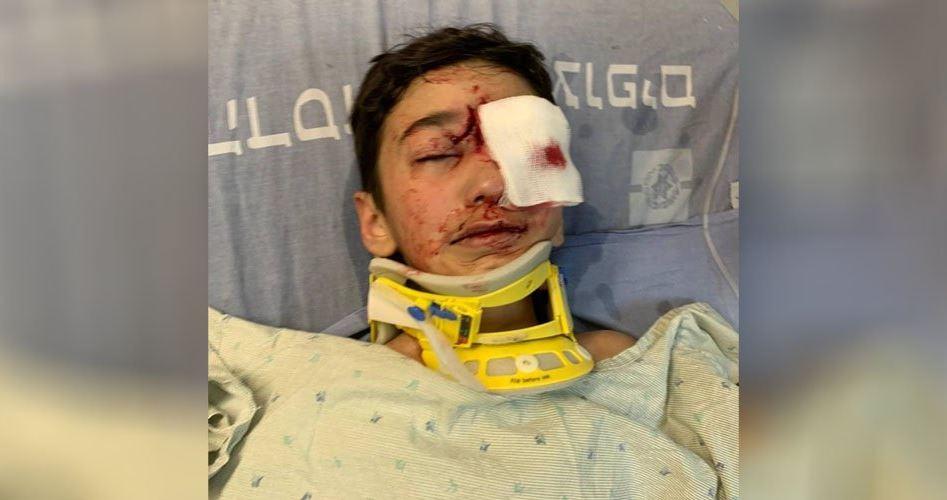 Bambino gerosolimitano gravemente ferito dalle forze israeliane