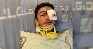 IOA chiude indagini su minorenne palestinese che ha perso l'occhio sinistro a seguito di aggressione israeliana