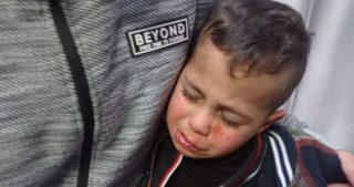Bambino palestinese ferito durante attacco di coloni a Ramallah