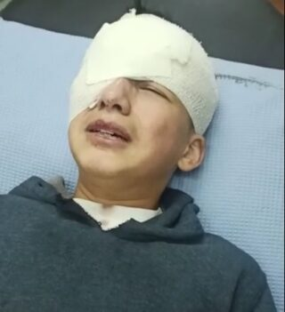 Bambino palestinese perde un occhio dopo essere stato colpito dalle IOF a Hebron
