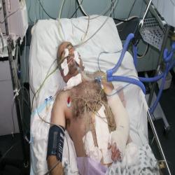 Continuano le violazioni israeliane: ferito un cittadino palestinese a est di Khan Yunes