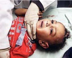 Bimba palestinese di 4 anni resa tetraplegica dai soldati di Israele